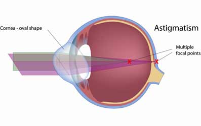 astigmatismos