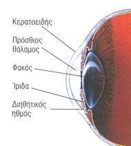 glaucoma_1